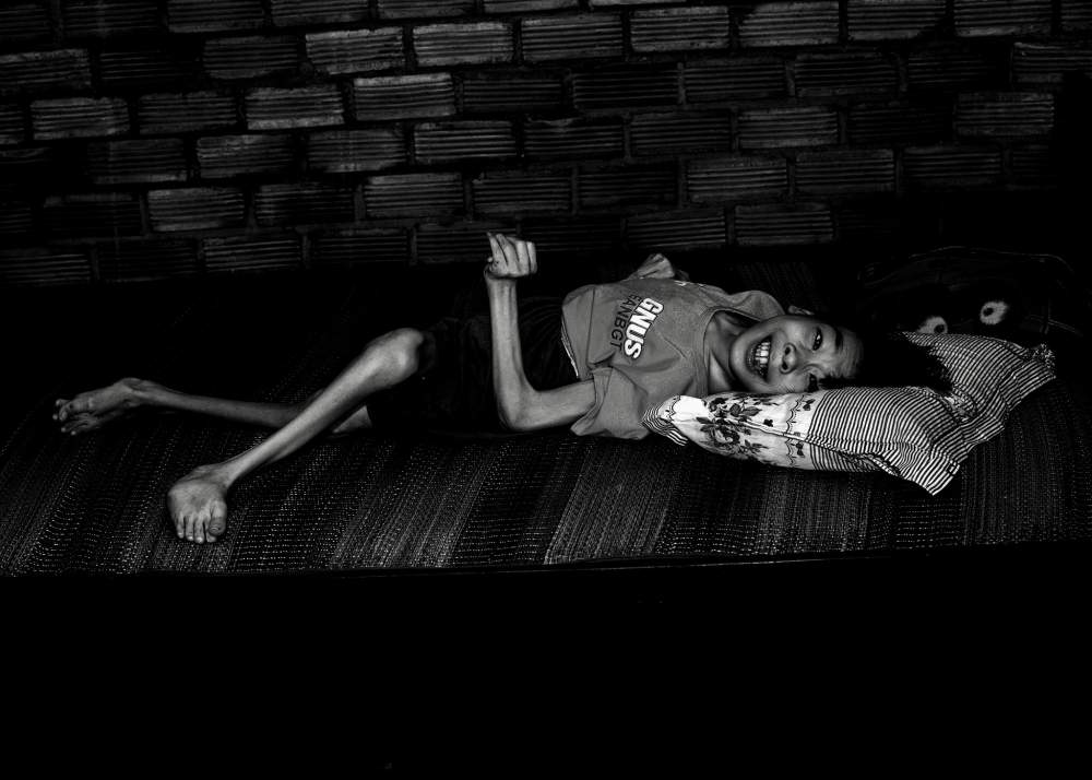 A child severely disabled from Agent Orange
